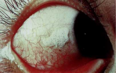 Conjunctival Dryness (Xerosis) causes p000a.jpg